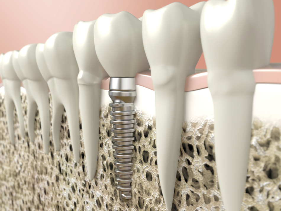 Tips For Choosing A Cosmetic Dentist