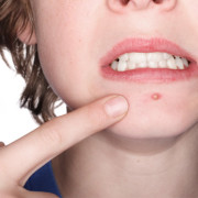 Additional Facts About Acne