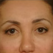 Eyelid Surgery Enhances Your Appearance And Youthful Look
