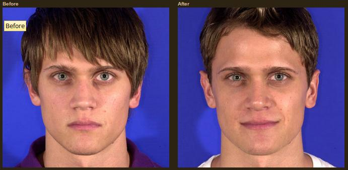 The Need and Basics Of Rhinoplasty For Men